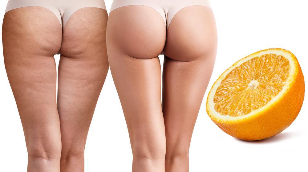 le a narancsbőrrel bejegyzés képe